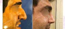 جراحی بینی سمنان