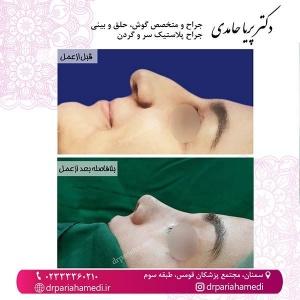 جراحی-بینی-55