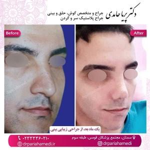 جراحی-بینی-57