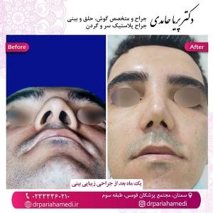 جراحی-بینی-59