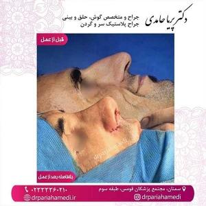 جراحی-بینی-68