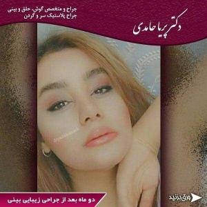 جراحی-بینی-70